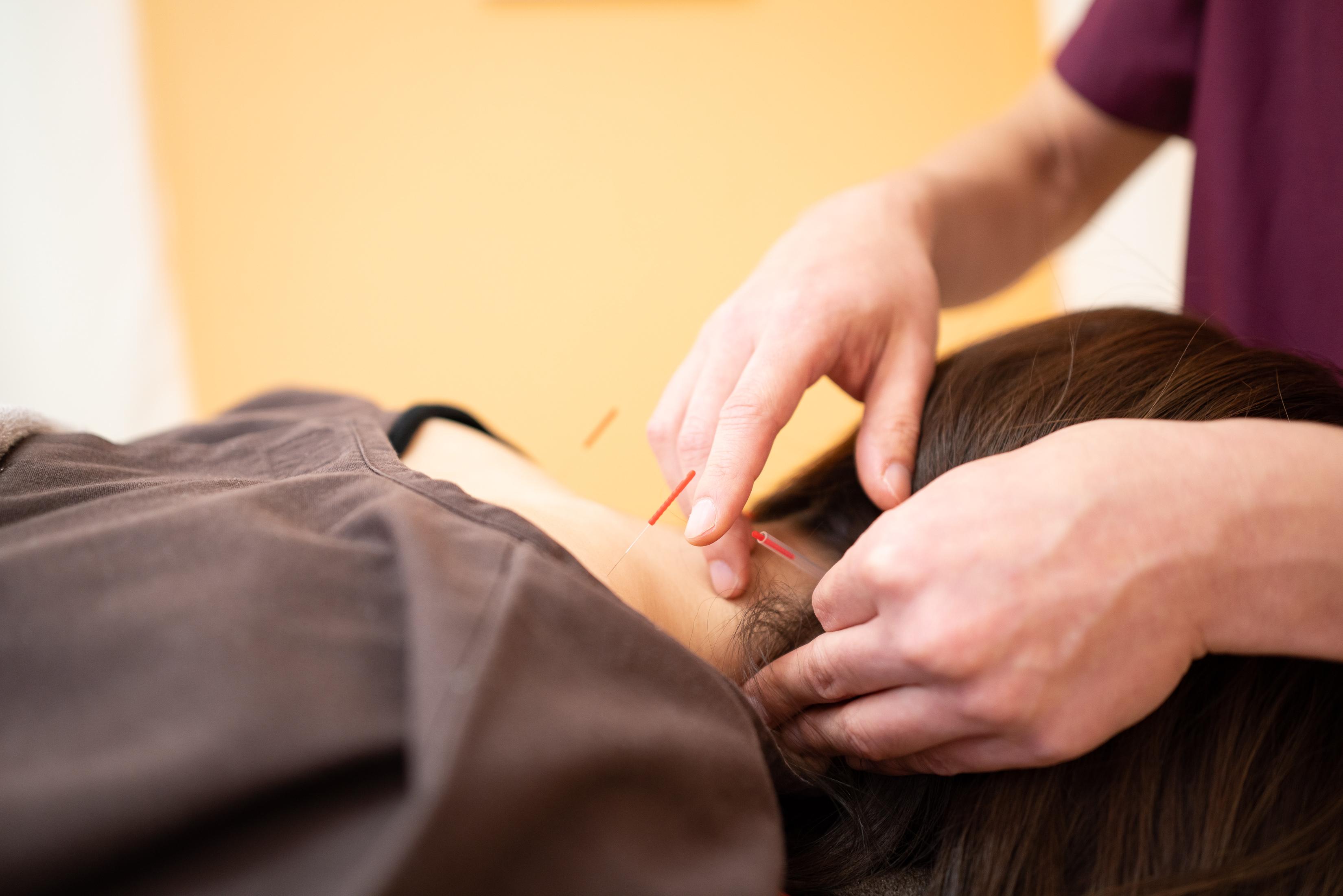 肩こり・肩の痛みは、仙台市若林区おきの鍼灸整骨院へ
