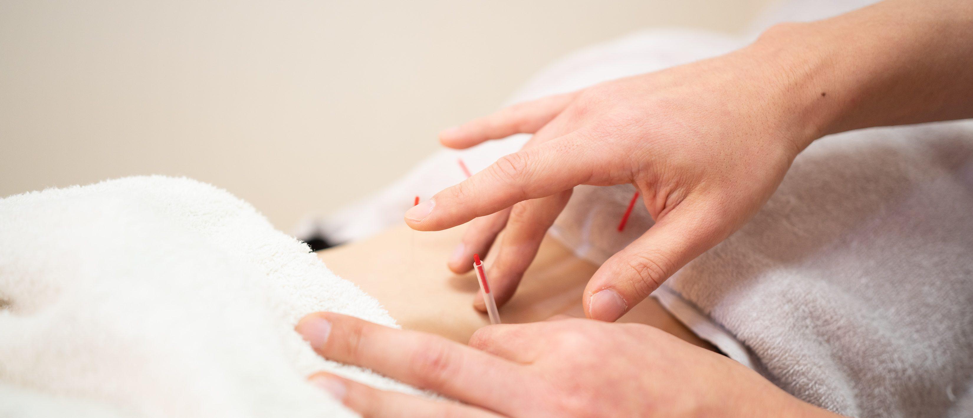 仙台市若林区で鍼灸院は、おきの鍼灸整骨院へ