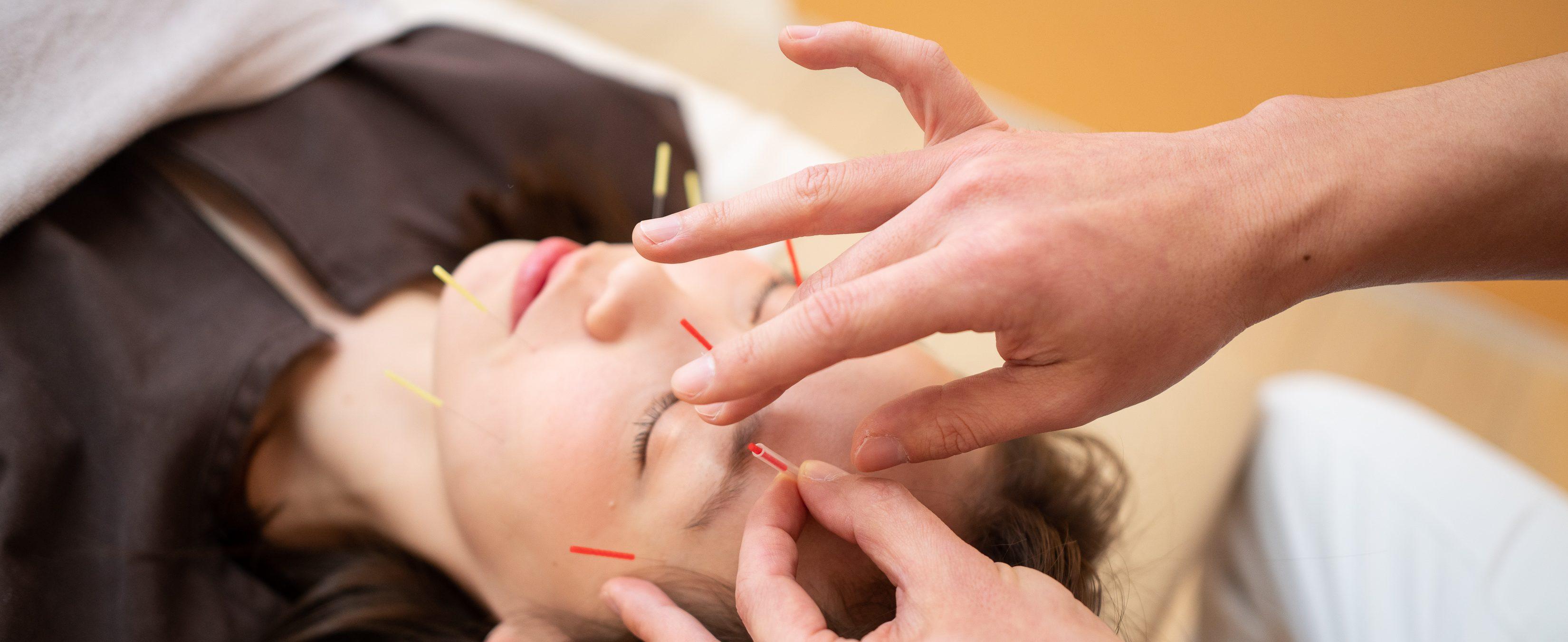 仙台市で美容鍼なら、おきの鍼灸整骨院へ